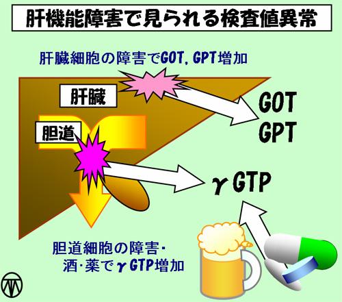 Γ gtp 高い